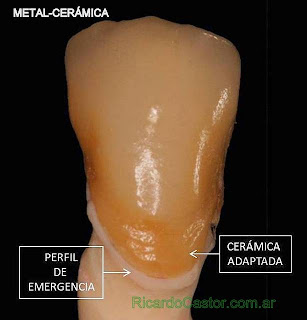 ceramica dental hombro adaptado