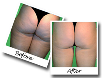 How To Get Rid Of Cellulite Forever