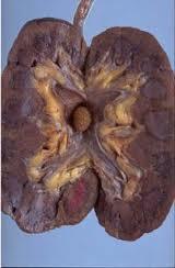http://obatherbal18.blogspot.com/2012/10/obat-herbal-batu-ginjal.html