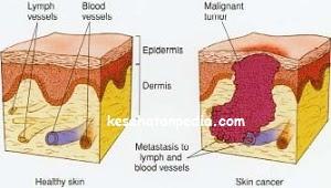 Penyebab dan gejala kanker kulit