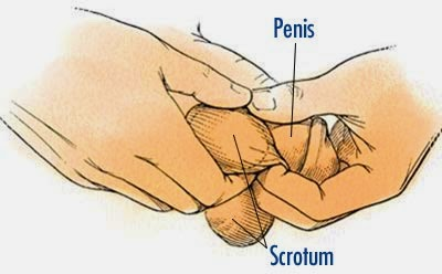 How to clean male penis