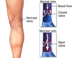 is varicose veins a condition