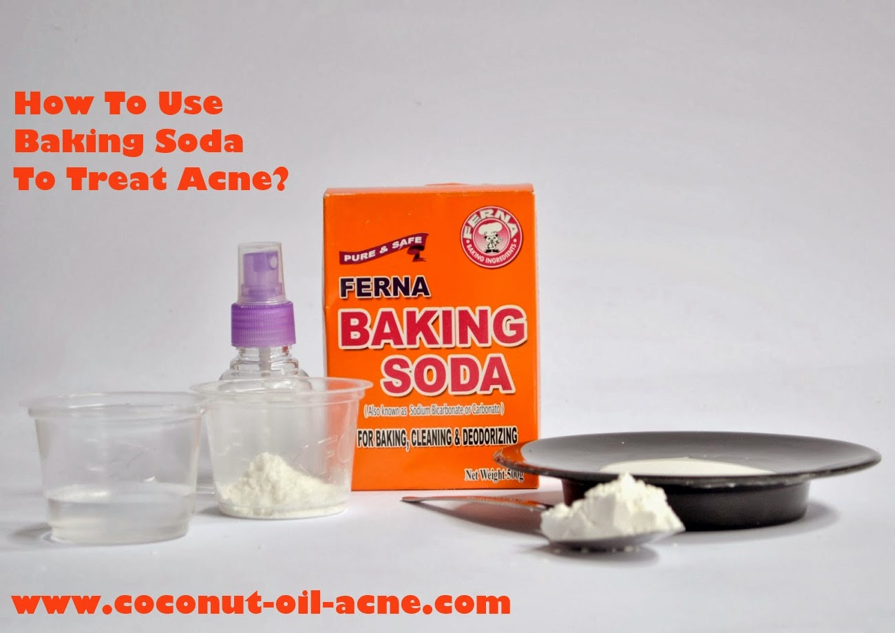 How-To-Use-Baking-Soda-To-Treat-Acne