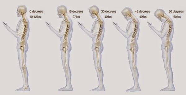 Malas posturas de nuestro cuello mientras vemos el móvil