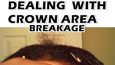 Dealing with Breakage in the Crown of the Head DiscoveringNatural