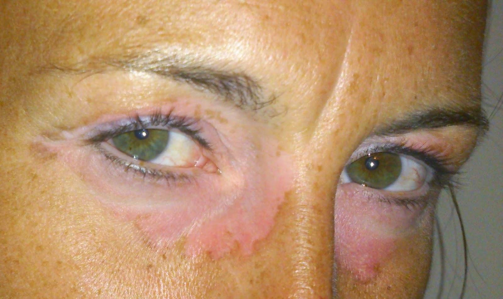 sentinel node malignt melanom