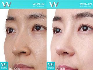 foto sebelum dan sesudah operasi plastik hidung-3