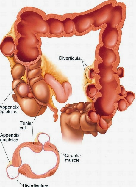 Nursing Interventions Risk for Fluid Volume Deficit related to Appendicitis