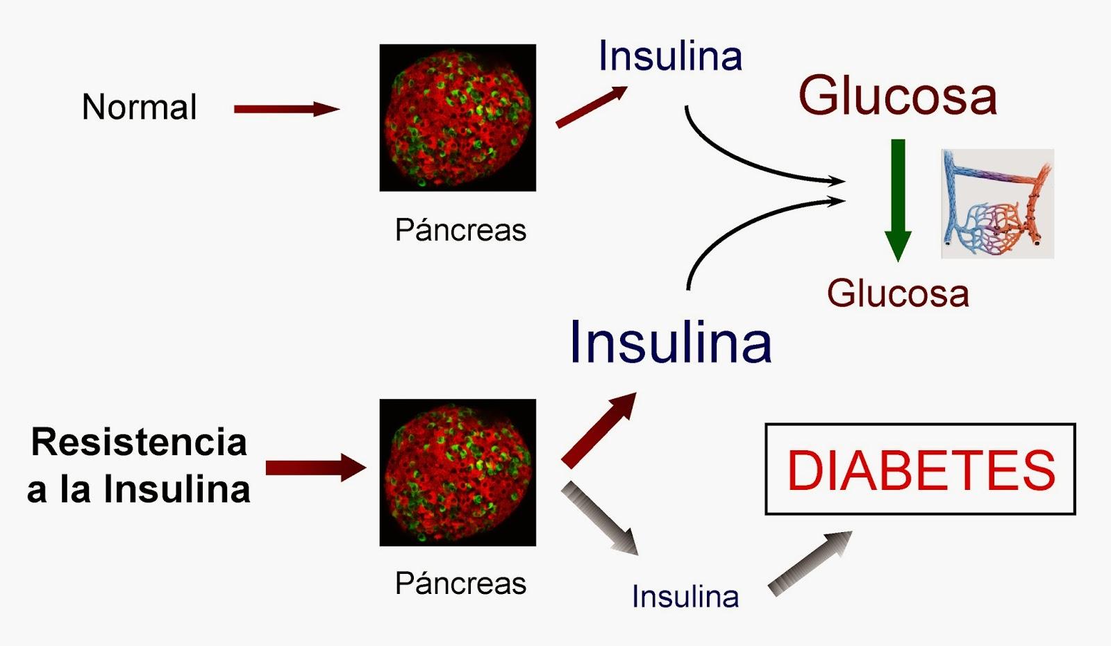 El fallo en el páncreas con resistencia a la insulina provoca diabetes