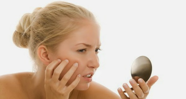 Best Herbal Remedies to Cure Severe Acne