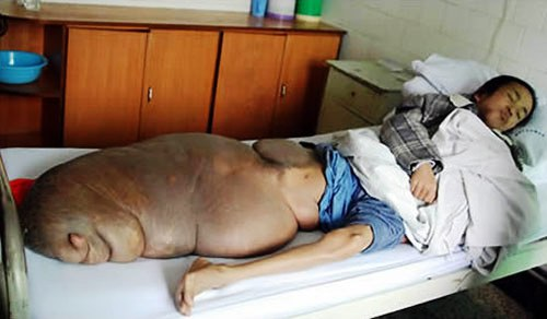 most horrible weirdest strangest diseases Chen Zongtao 70 kgs leg tumor neurofibroma