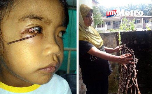 Dalam kejadian itu, Wan NurQaleesya Abdullah dikatakan memanjat pagar berdawai di belakang rumah gara-gara cuba mengambil selipar adiknya yang dicampakkan ke luar pagar sebelum dawai tertusuk pada mata kanannya sehingga menjadi bengkak dan berdarah.