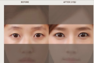 Korean Best Eye Plastic Surgery - Love Band Wonjin