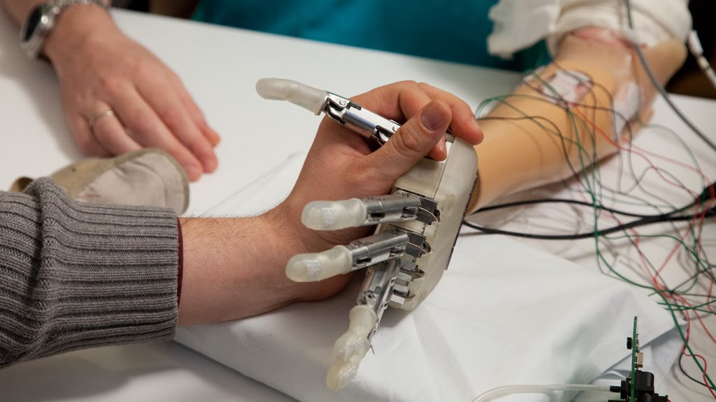 Patients, Accident, Health, Hand, Arm, Technology, News, Bionic Hand,   Sensory-enhanced, Feel, Touch, Denmark, , Surgeons, Lifehand2, Surgery, Dennis Aabo Sorensen, Rome,