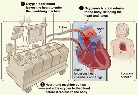 bypass machine for breathing