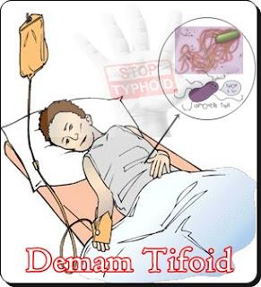 Obat Demam Tifoid Penyembuhan Secara Herbal