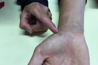 Bradl: Jangan Tanya Kenapa Absen di Kandang Sendiri, Lihat Saja Tangan Saya!