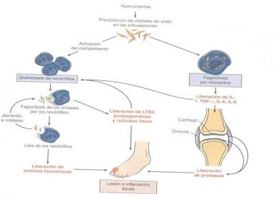 coca cola sube acido urico porque cae gota en el pie acido urico causas y efectos