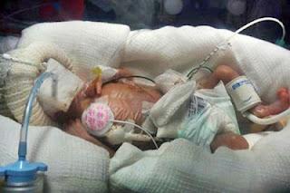 سبحان الله :بالصور,,أصغر مولودة بالعالم عمرها 5 شهور ووزنها 340 جرامًا وطولها 27 سم