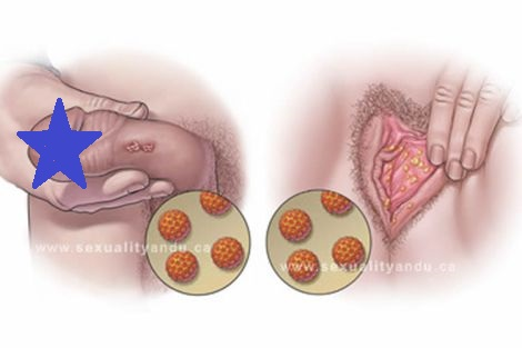 10 cosas que debes saber sobre el virus del papiloma humano (VPH).