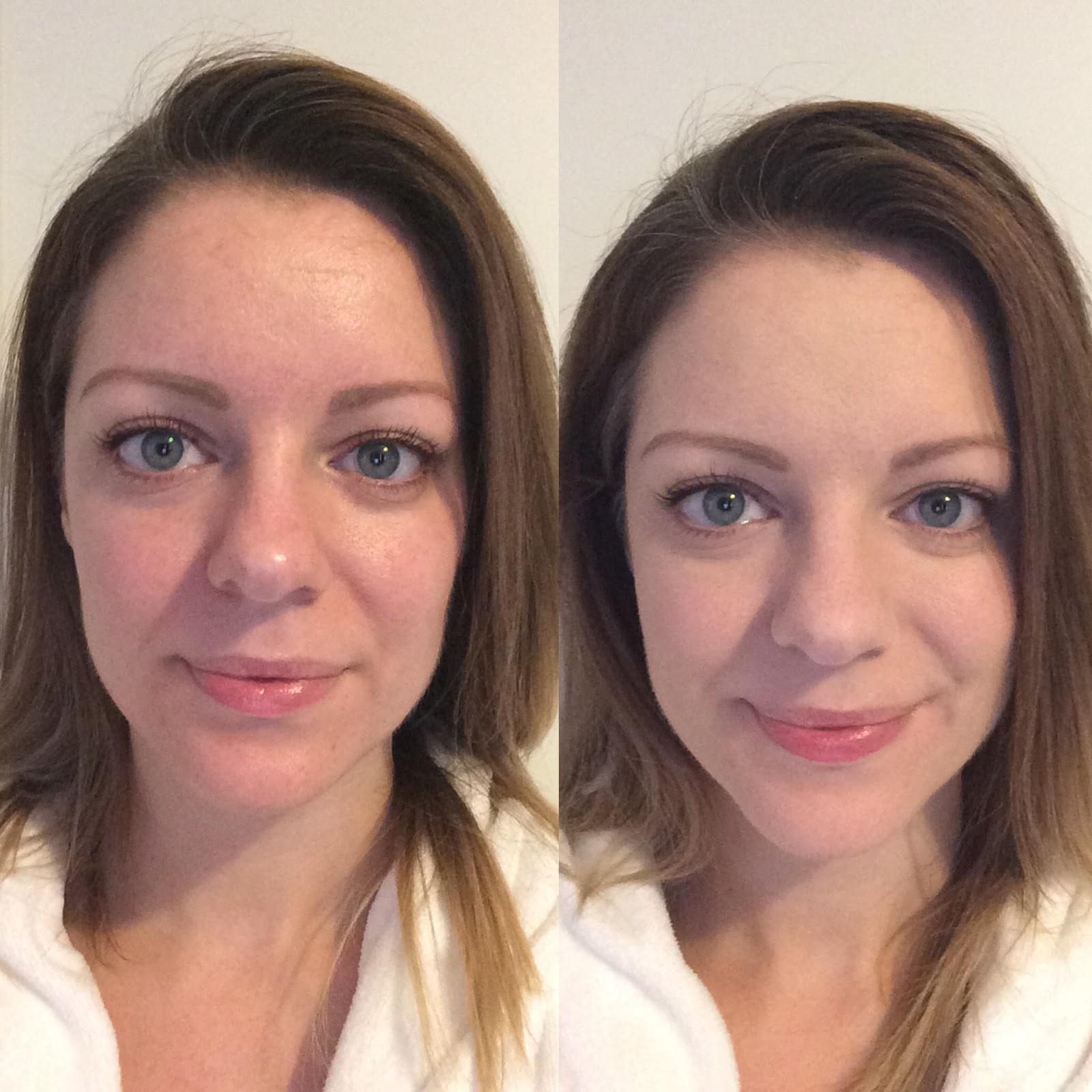 bare minerals before and after. bare minerals blemish remedy before and after e