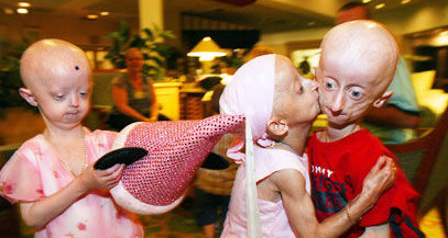 most horrible weirdest strangest diseases progeria rare genetic disorder less aged old child