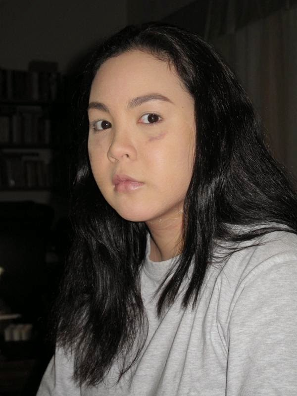 Battered Claudine Barretto circualtes online