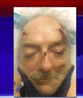 Unknown Man #Struck By Truck: Can You Identify This Victim?