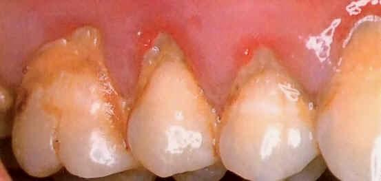 Plaque Teeth
