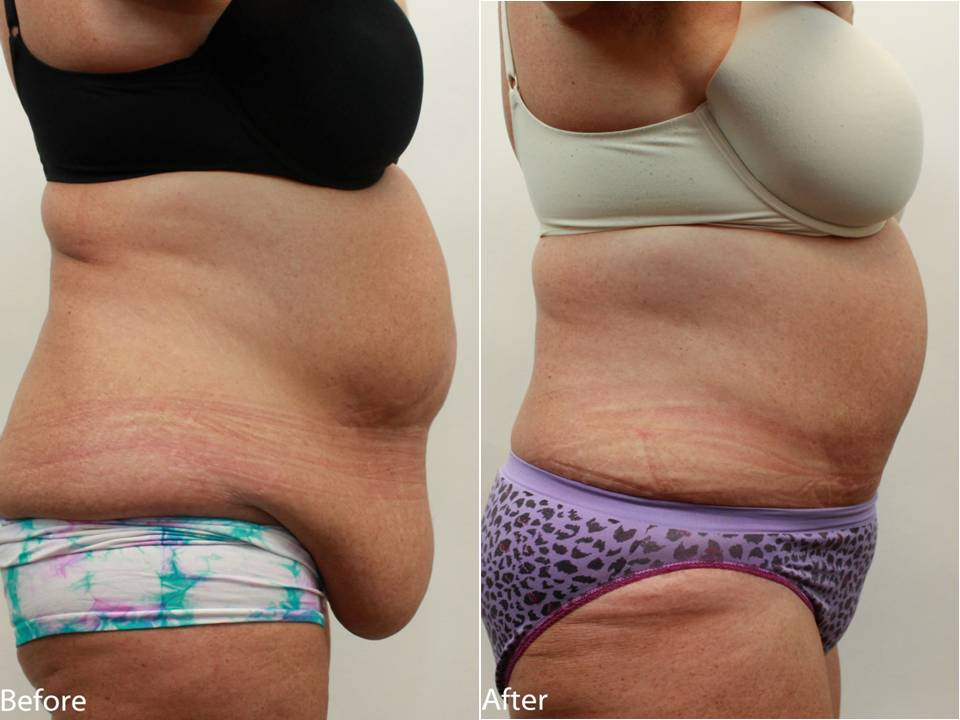 How To Get Rid Of Loose Belly Skin Naturally
