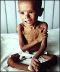 Luchemos contra la desnutrición...