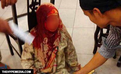 Kisah Sebenar Penjawat Awam Diserang Juruteknik Di Putrajaya Terjawab 6 Foto
