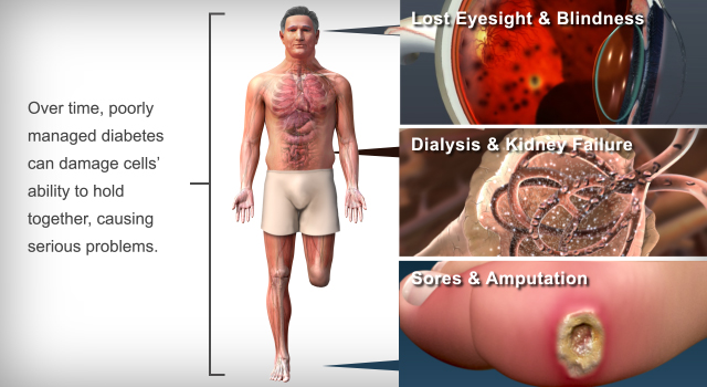 Long term effect of Type 2 Diabetes