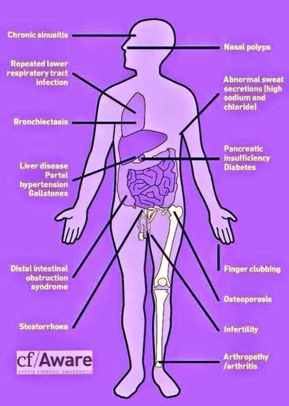 cystic fibrosis case study quizlet