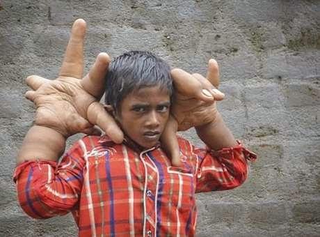 Menino tem mãos gigantes (Foto: Reprodução/Twitter)