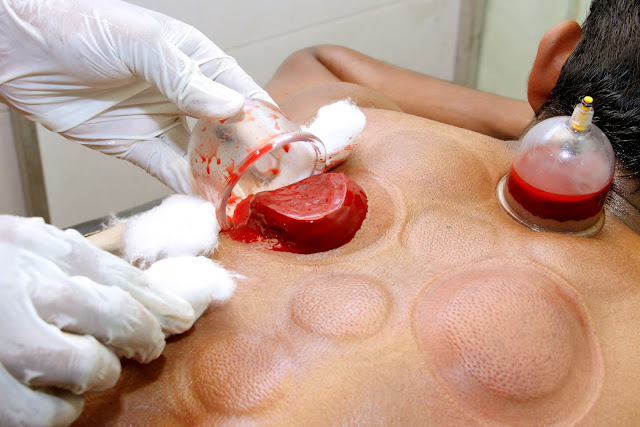 Unani Hijama Treatment: One of the fastest pain relief ...