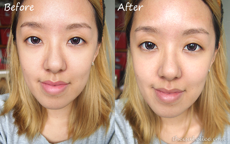 Before and after Novexpert The Expert Exfoliator
