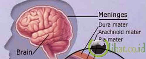 Penyakit meningokokus