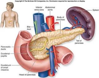 Diabetes dan Obat Herbal Alami