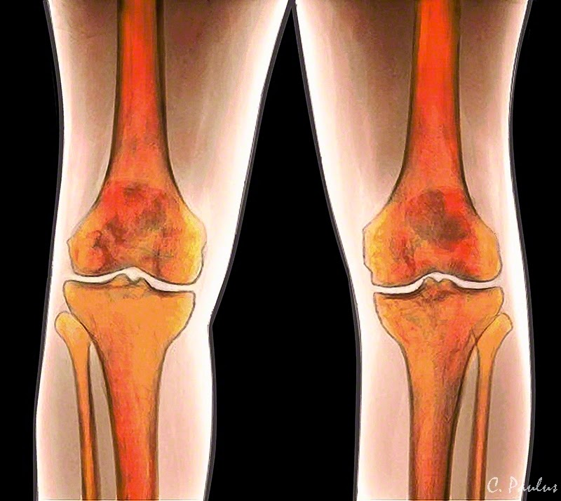 AP Color Knee X-Ray Image of a Normal Knee Joint