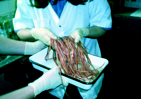 Onde é possível tomar um teste de sangue em helminths