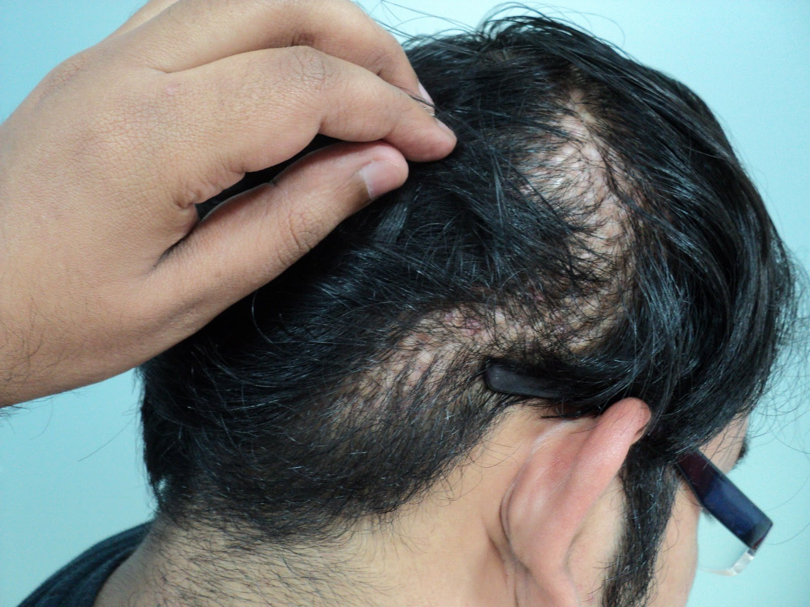 Truth About Cheap Hair Transplants
