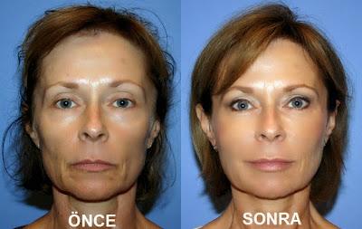 yüz estetiği, yüz germe ameliyatı, cilt germe operasyonu