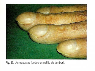 Acropaquias