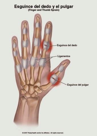 La lesión de Casillas: fractura del primer metacarpiano
