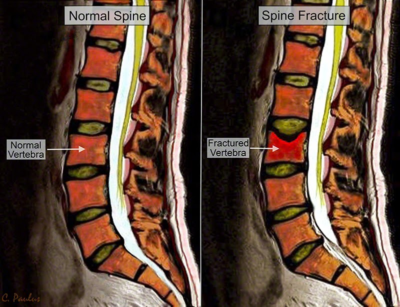 Sagittal Lumbar Color MRI, Normal Spine and Compression Fracture
