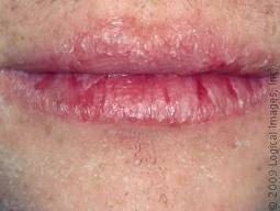beginning stages of herpes simplex 1