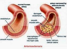 Terapi Arteriosclerosis Dengan Jus Herbal