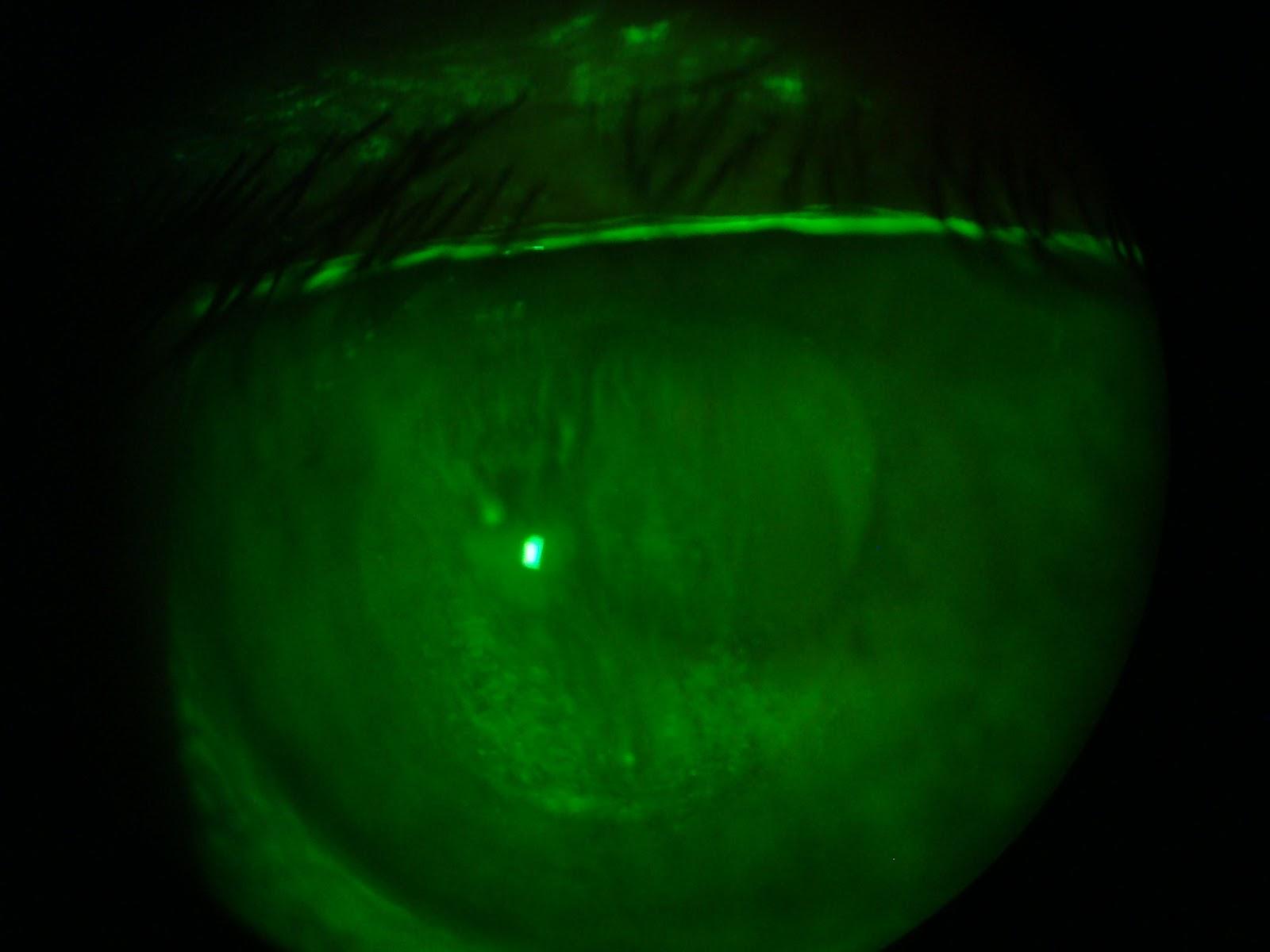 Ceratite causada por LC RGP de diâmetro pequeno com toque apical, lesão no  ápice. Observa-se também a marca deixada pela lente na córnea. 20cde6db0a
