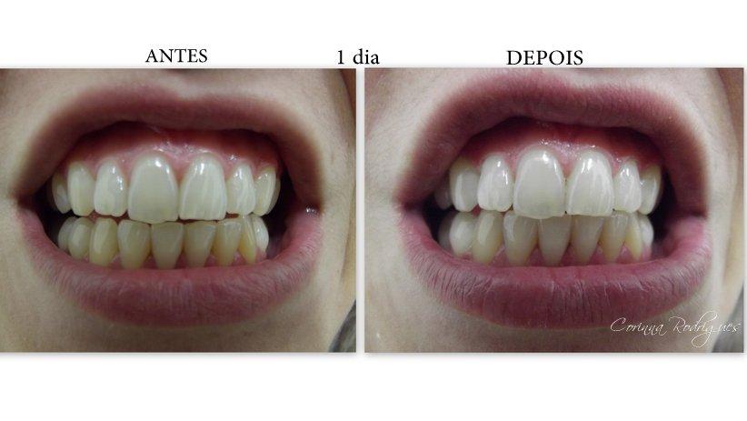 Tag Agua Oxigenada Para Clarear Os Dentes Antes E Depois